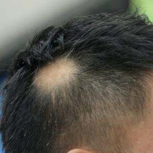 円形脱毛症について