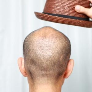 帽子をかぶると本当にハゲるのか?暑い夏の対処法