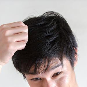 毛の密度は20代がピーク 早めの治療が有効なワケ