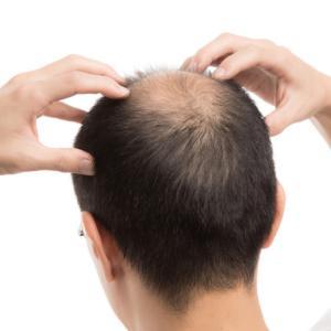 「薄毛の人は脂が多い」というのは本当か?