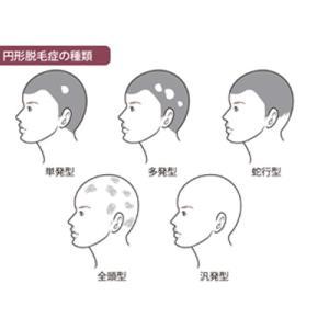 AGA薬は円形脱毛症には効きません