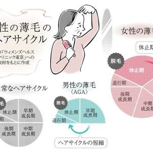 女性の薄毛 原因はいろいろあります