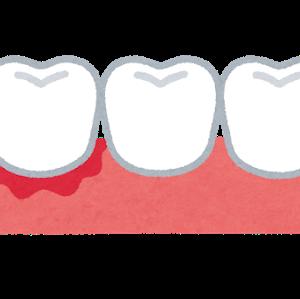 9月14日 55.0kg 歯:歯肉炎