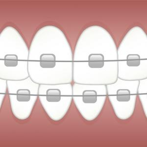 スペインでの歯科矯正について