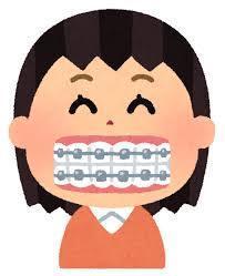 歯並びの変化 ~上の歯偏~