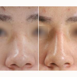プロテーゼによる隆鼻術のご紹介【男性モニター様】