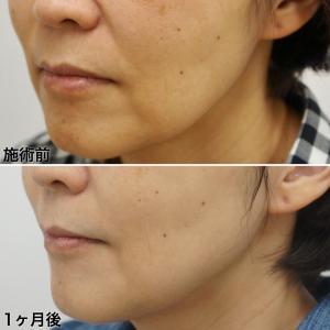 美肌アモーレの症例画像をご紹介
