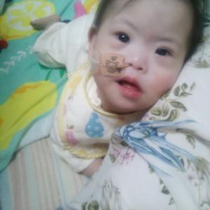 1歳5ヶ月と、MRI検査結果