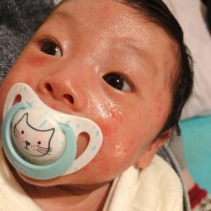 1m  乳児湿疹で悩んでます。。。