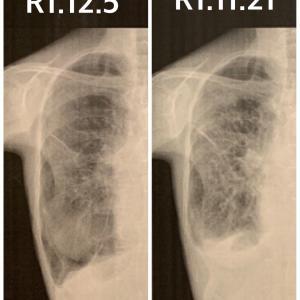 入院22日目。がん治療再開してます❣️