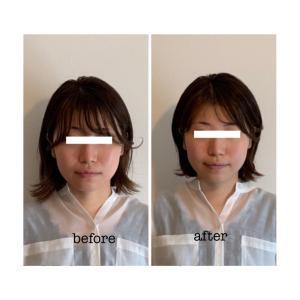 お顔の歪みや張りの原因は体や筋肉の使い方かも
