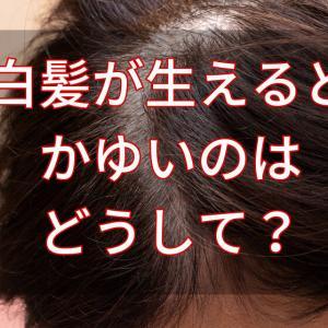 白髪が生えるとかゆいのはなぜ?3つの原因と今すぐできる対処法。最新の理由を現役美容師が解説。