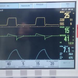 サーボ i シリーズ  人工呼吸器の見方