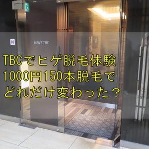 TBCヒゲ脱毛体験コース1000円150本でどれだけ変わるのか?