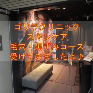 【受診報告】ゴリラクリニックのスキンケア 毛穴の開き・黒ずみ治療