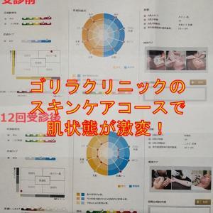 ゴリラクリニック渋谷院スキンケアで毛穴が改善効果がすごかった!
