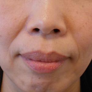 グロースファクター治療によるほうれい線治療 40代女性⑪