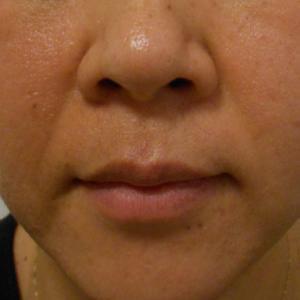グロースファクターによるほうれい線治療 30代女性⑤