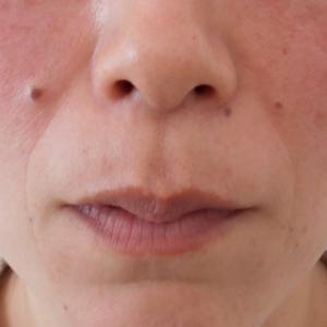 グロースファクター治療によるほうれい線治療 40代女性④