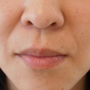グロースファクター治療によるほうれい線治療 40代女性⑫