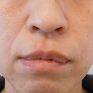 グロースファクター治療によるほうれい線治療 40代女性⑩