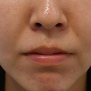 グロースファクターによるほうれい線治療 30代女性⑧