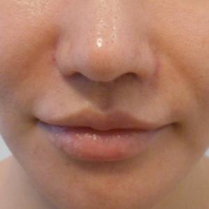 グロースファクターによるほうれい線治療 30代女性⑨