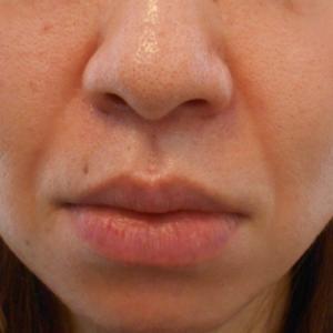 グロースファクター治療によるほうれい線治療 40代女性⑬