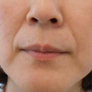 グロースファクター治療によるほうれい線治療 40代女性⑭