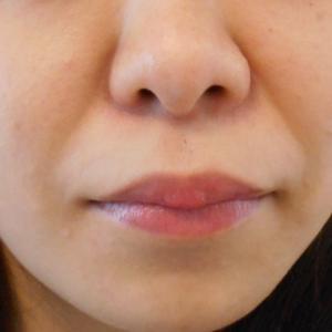 グロースファクターによるほうれい線治療 30代女性⑪