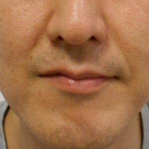 グロースファクターによるほうれい線治療 40代男性①