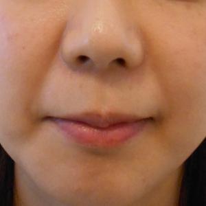 グロースファクターによるほうれい線治療 30代女性⑫