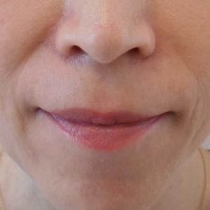 グロースファクター治療によるほうれい線治療 40代女性⑮