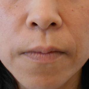 グロースファクター治療によるほうれい線治療 40代女性⑯