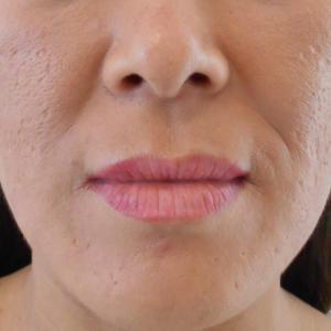 グロースファクター治療によるほうれい線治療 40代女性⑱