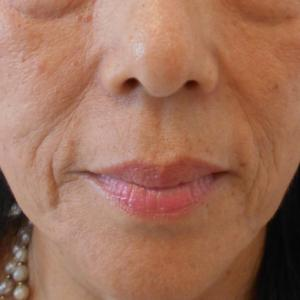 グロースファクターによるほうれい線治療 60代女性④