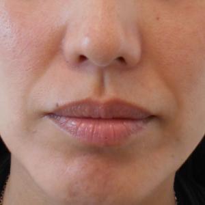 グロースファクターによるほうれい線治療 30代女性⑭