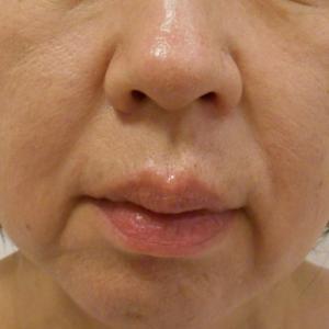 グロースファクターによるほうれい線治療 50代女性⑤