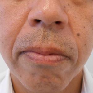 グロースファクター治療によるほうれい線治療 40代男性②