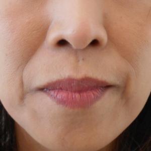 グロースファクターによるほうれい線治療 50代女性⑥