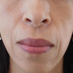 グロースファクターによるほうれい線治療 50代女性⑦