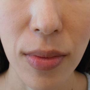 グロースファクターによるほうれい線治療 40代女性⑳