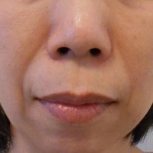 グロースファクターによるほうれい線治療 50代女性⑨