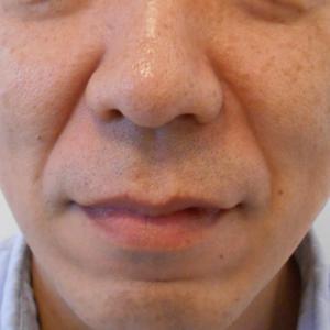 グロースファクターによるほうれい線治療 40代男性③