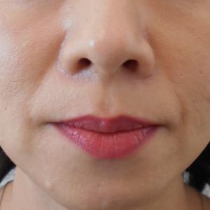 グロースファクター治療によるほうれい線治療 40代女性㉑