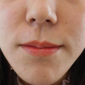 グロースファクターによるほうれい線治療 30代女性⑯