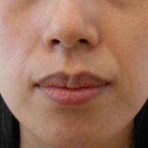 グロースファクターによるほうれい線治療 30代女性⑰
