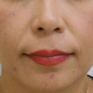 グロースファクターによるほうれい線治療 40代女性①