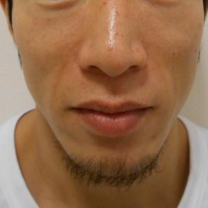 グロースファクターによるほうれい線治療 30代男性①