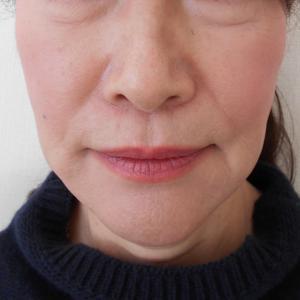 グロースファクターによるほうれい線治療 60代女性②